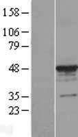 NBL1-17430 - alpha Tubulin 3c Lysate