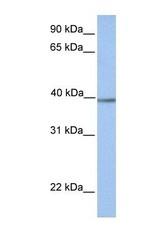 NBP1-54766 - Aminomethyltransferase
