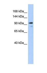 NBP1-55099 - Angiomotin-like protein 1 / AMOTL1