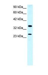 NBP1-52958 - ASGR2