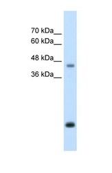 NBP1-58061 - Asporin