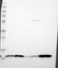 NBP1-87482 - Beta-2-microglobulin