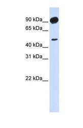 NBP1-53079 - Beta-adducin (ADD2)