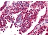 NBP1-78007 - Amyloid beta