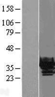 NBL1-09499 - beta B1 Crystallin Lysate
