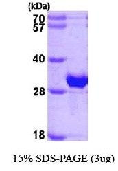 NBP1-44470 - Beta-crystallin B1