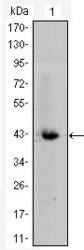 NBP1-51588 - Catenin beta-1