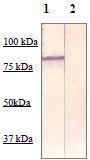 NBP1-73989 - Catenin beta-1