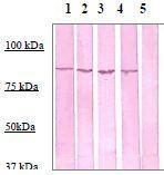 NBP1-73991 - Catenin beta-1