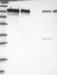 NBP1-89989 - Catenin beta-1