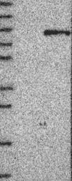 NBP1-87511 - Beta-glucuronidase