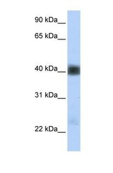 NBP1-59751 - SGCB (Beta-sarcoglycan)