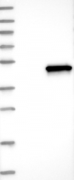 NBP1-90300 - SGCB (Beta-sarcoglycan)