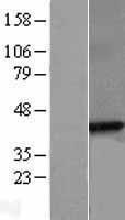 NBL1-15903 - beta Sarcoglycan Lysate