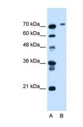 NBP1-69541 - Cholinesterase