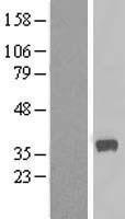 NBL1-08648 - CALHM2 / FAM26B Lysate