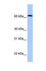 NBP1-53182 - Calicin