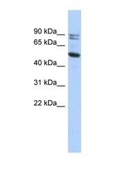 NBP1-53117 - Calpain-10