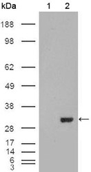 NBP1-47415 - Carbonic anhydrase 1