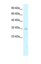 NBP1-59149 - Claudin-15 / CLDN15
