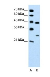 NBP1-60010 - Claudin-18 / CLDN18