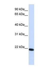 NBP1-59277 - Claudin-19 / CLDN19