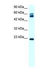 NBP1-59157 - Claudin-8 / CLDN8