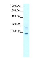 NBP1-59156 - Claudin-9 / CLDN9