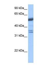 NBP1-54669 - Coilin