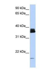 NBP1-54401 - Cyclophilin A