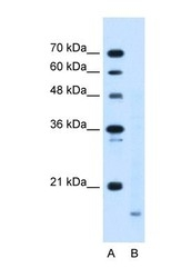 NBP1-69378 - Cyclophilin B