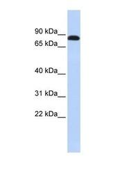 NBP1-59227 - Desmocollin-3