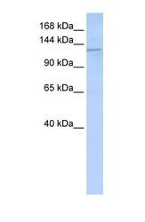 NBP1-59200 - Desmoglein-2