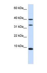 NBP1-54806 - DBI / ACBP