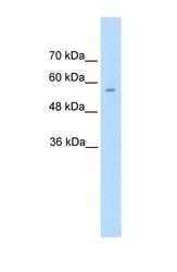 NBP1-56918 - AADC / DDC