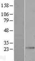 NBL1-10070 - dynein, cytoplasmic 2, light intermediate chain 1 Lysate