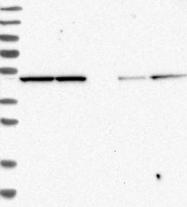 NBP1-84869 - EIF3E / EIF3S6