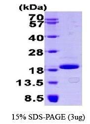 NBP1-30218 - EIF4EBP1 / 4E-BP1