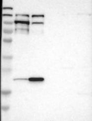 NBP1-89390 - EIF4ENIF1 / 4E-T