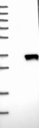 NBP1-83057 - EIF4H / WBSCR1