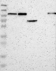NBP1-84845 - ENAC alpha / SCNN1A
