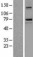 NBL1-15746 - epithelial Sodium Channel beta Lysate