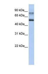 NBP1-56656 - Epsin-1