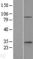 NBL1-10354 - ethanolamine kinase Lysate
