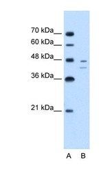 NBP1-53110 - Fumarylacetoacetase