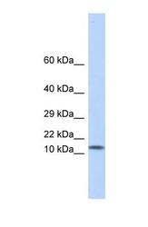 NBP1-59002 - Galectin-1