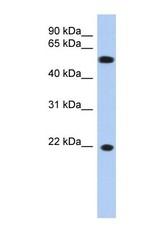 NBP1-52908 - Gamma-crystallin C