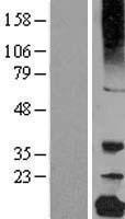 NBL1-09501 - gamma C Crystallin Lysate
