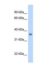 NBP1-59744 - SGCG (Gamma-sarcoglycan)