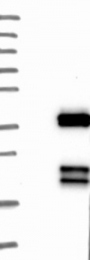 NBP1-90299 - SGCG (Gamma-sarcoglycan)